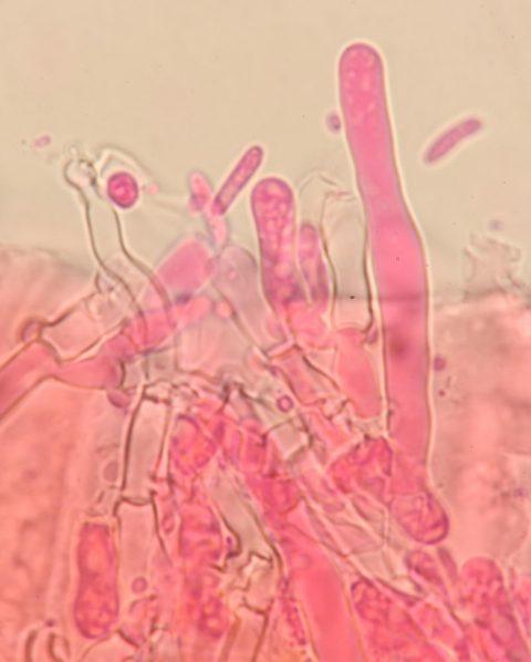 Leptozystide in Phloxin, x1000