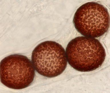 Ältere Sporen in Wasser, x1000