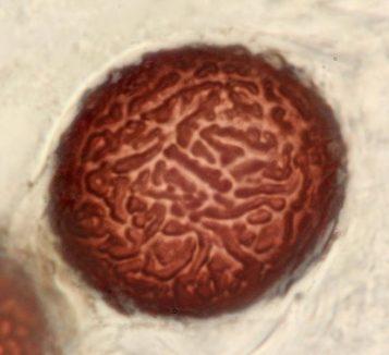 Älter Spore in Wasser, x1000