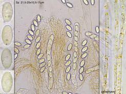 Asci, Sporen und Paraphysen in Wasser, x400 und x1000