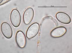Sporen mit Paraphysenspitze in Wasser, x1000