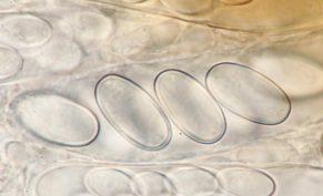 Sporen in Wasser, x1000