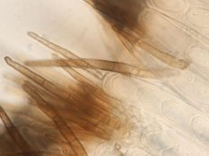 Asci und Haare des Hymeniums in Wasser, x1000