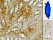 Asci und Sporen in Wasser, eine Spore in CB, x1000