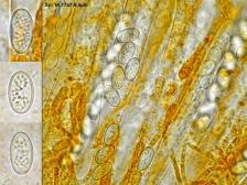 Asci, Paraphysen und Sporen in Wasser, x1000