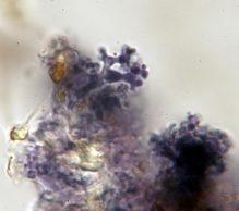 Dendrophysen in Melzer, x1000