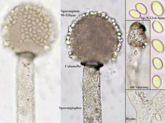 Tafel mit Sporangien und Sporen, x400 resp. x1000