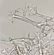Sporangienträger in Wasser, x1000