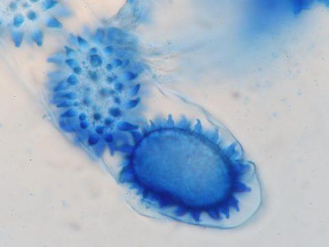 Ascus und Sporen in CB, x1000