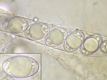 Ascus und Sporen in Wasser, x1000