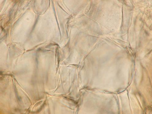 Exzipulum-Zellen in Wasser, x1000
