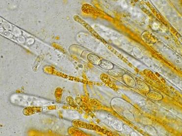 Asci und Paraphysen in Wasser, x1000