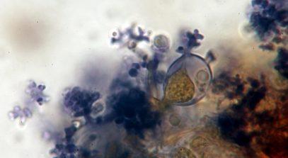 Gloeozystide und Dendrophysen in Melzer, x1000