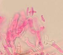 Basidien mit Sporen in Phloxin, x1000