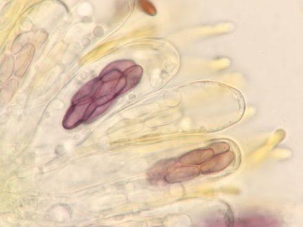 Asci, Sporen und Paraphysen in Wasser, x1000