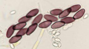 Sporencluster in Wasser, x1000