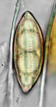 Sporenoberfläche in Baral's, x1000