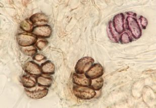 Asci und Sporen in Wasser, x100