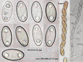 Tafel mit Sporen in Wasser und Asci in Baral's, x1000 resp. x400