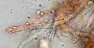 Dickwandige, skeletoide Hyphenenden im Hymenium, x1000