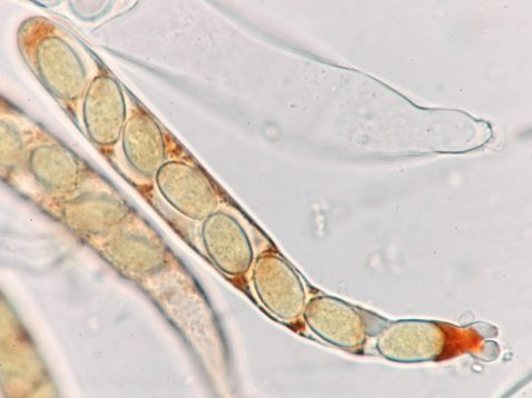 Ascus mit Sporen in Baral's, x1000