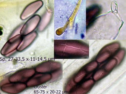 Mikrotafel mit Sporen und Paraphysen in Wasser, x1000