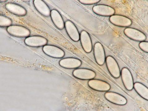 Asci und Sporen in CB, x1000