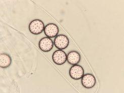 Asci und Sporen in Wasser, x1000