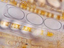 Ascus, Paraphysen und Sporen in Wasser, x1250