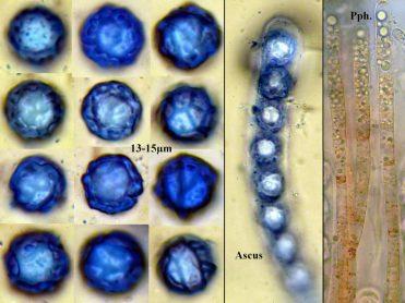 Sporentafel mit Ascus in CB und Paraphysen in Wasser, x1000