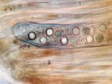 Ascus und Paraphysen in Lugol, x1000