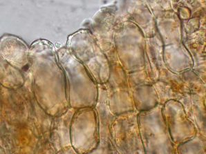 Randzellen in Wasser, x1000