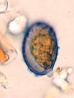 Spore in Melzer, x1000