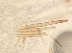 Haare des Hymeniums in Wasser, x1000