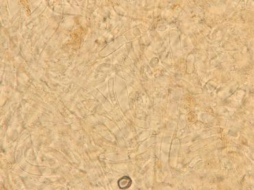 Exzipulum-Zellen, x1000