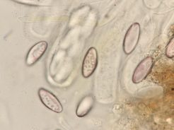 Freie Sporen in Wasser, x1000