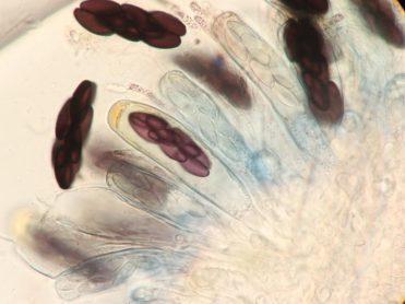 Asci und Sporen in Baral's, x630