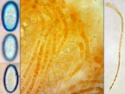 Sporen in CB und Paraphysen in Wasser, x1000