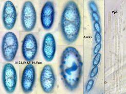 Ascus und Sporen in CB, Paraphysen in Wasser, x400 resp. x1000