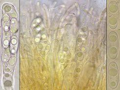 Asci und Sporen in Wasser, x400 resp. x1000