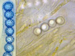 Asci und Sporen in Wasser bzw. CB, x1000