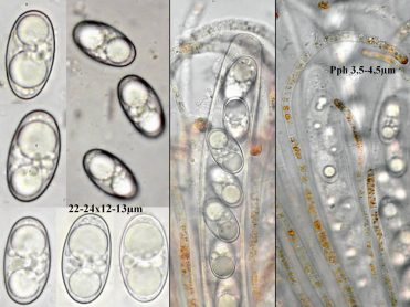 Asci, Sporen und Paraphyseni in Wasser, x1000