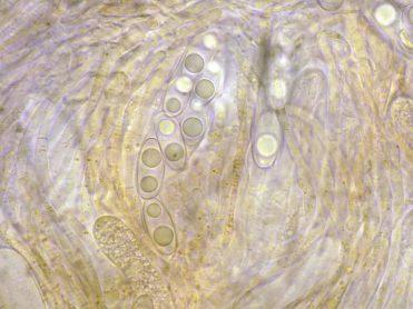 Asci mit Sporen in Wasser, x400