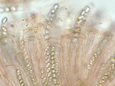 Asci und Paraphysen in Wasser, x400