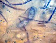 Ascus, Sporen und Paraphysen in CB x1000