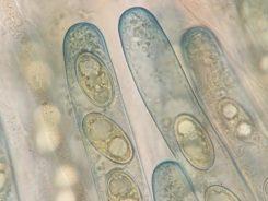 Asci und Sporen in Lugol's, x1000