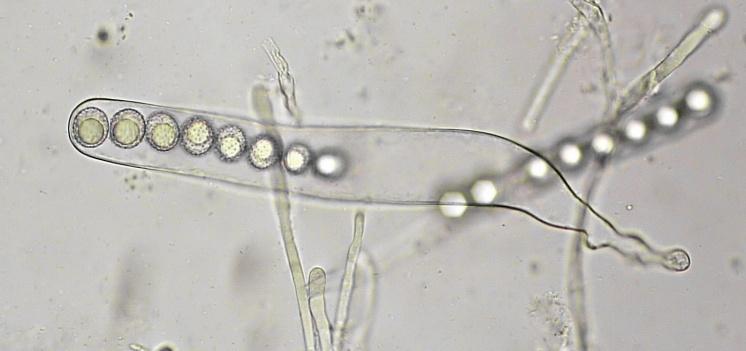 Ascus mit Sporen in Wasser, x400
