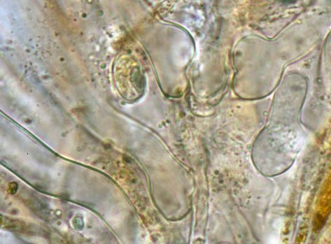 Ascusbasen in Wasser, x1000