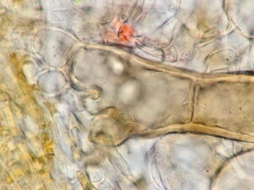Haarwurzel in Wasser, x1000
