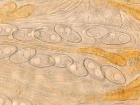 Asci mit Sporen in Wasser, x1000Asci mit Sporen in Wasser, x1000